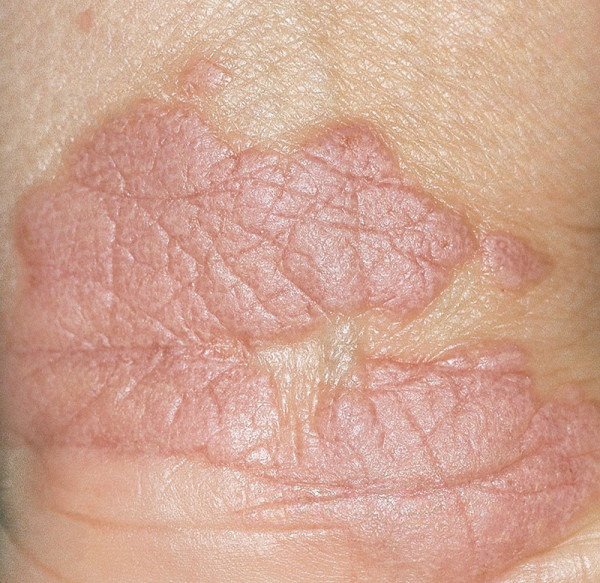 Skin Conditions Penis